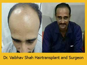 Hair transplant in mumbai result