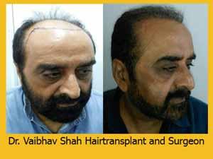 Hair transplant in mumbai result 2