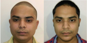chin implant surgery cost and before after images india
