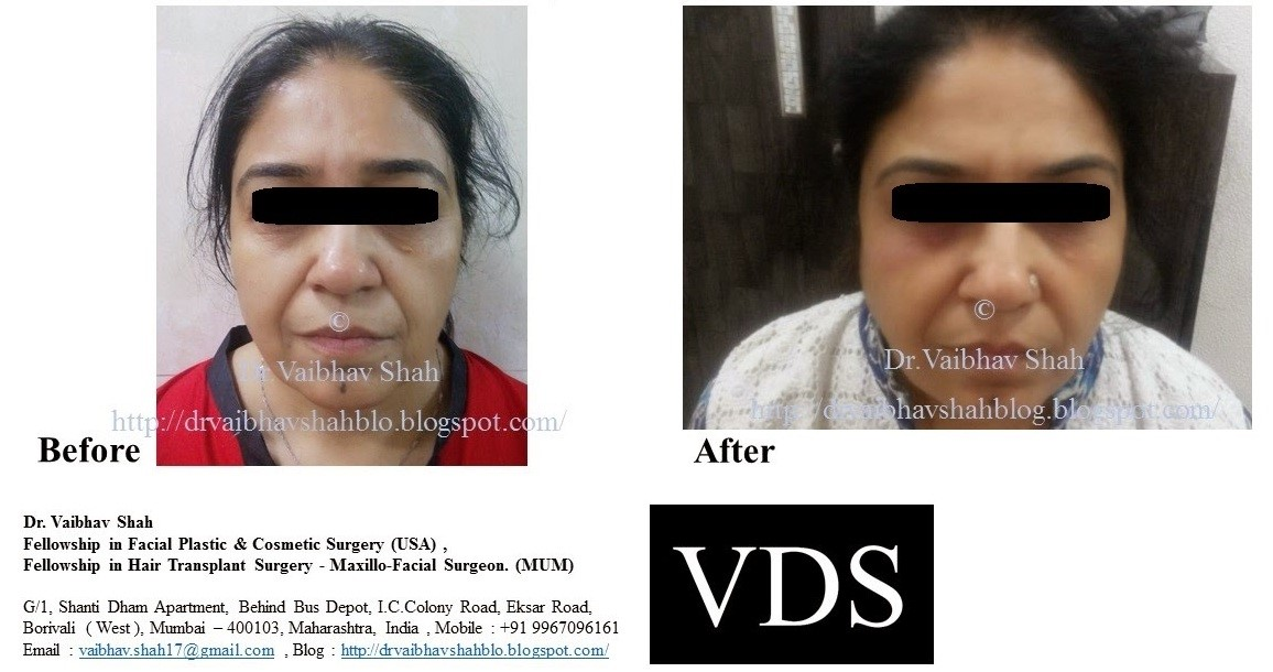 Non surgical facelift before after results by dr shah clinic mumbai